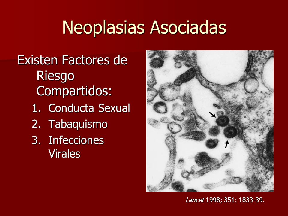 Neoplasias Asociadas Existen Factores de Riesgo Compartidos: