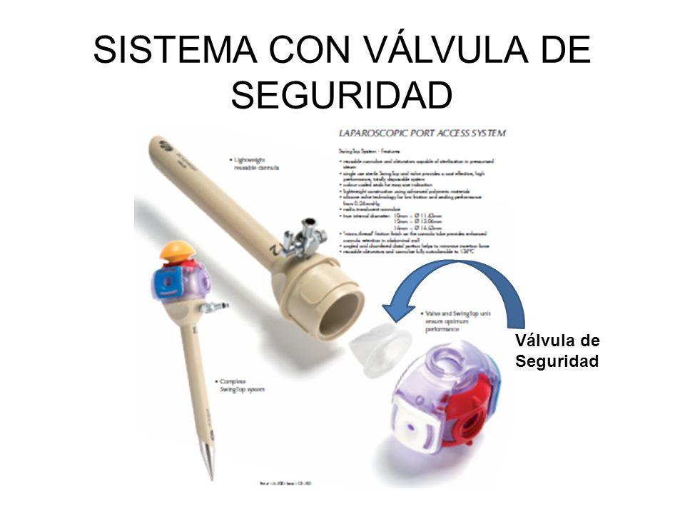 SISTEMA CON VÁLVULA DE SEGURIDAD