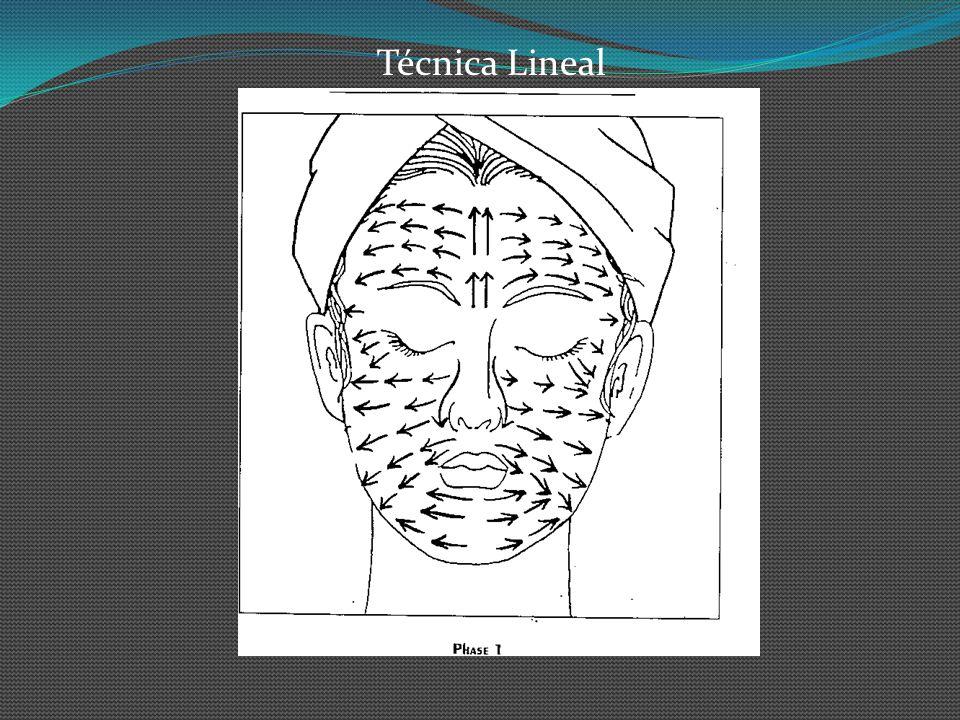 Técnica Lineal