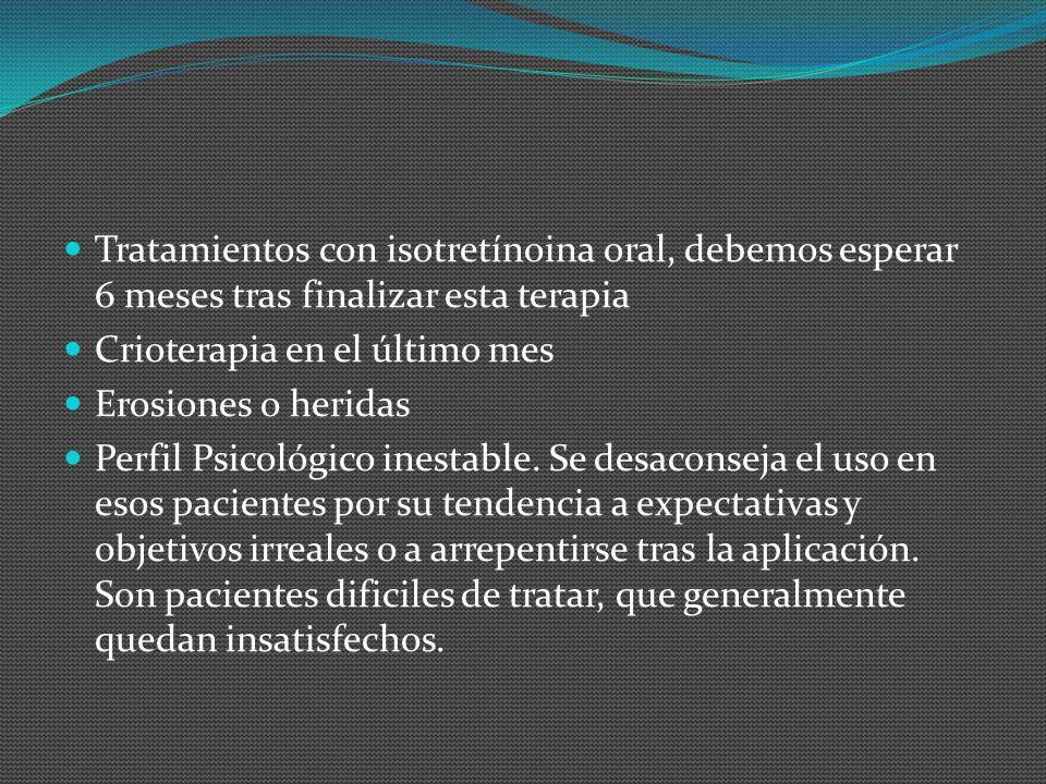 Tratamientos con isotretínoina oral, debemos esperar 6 meses tras finalizar esta terapia