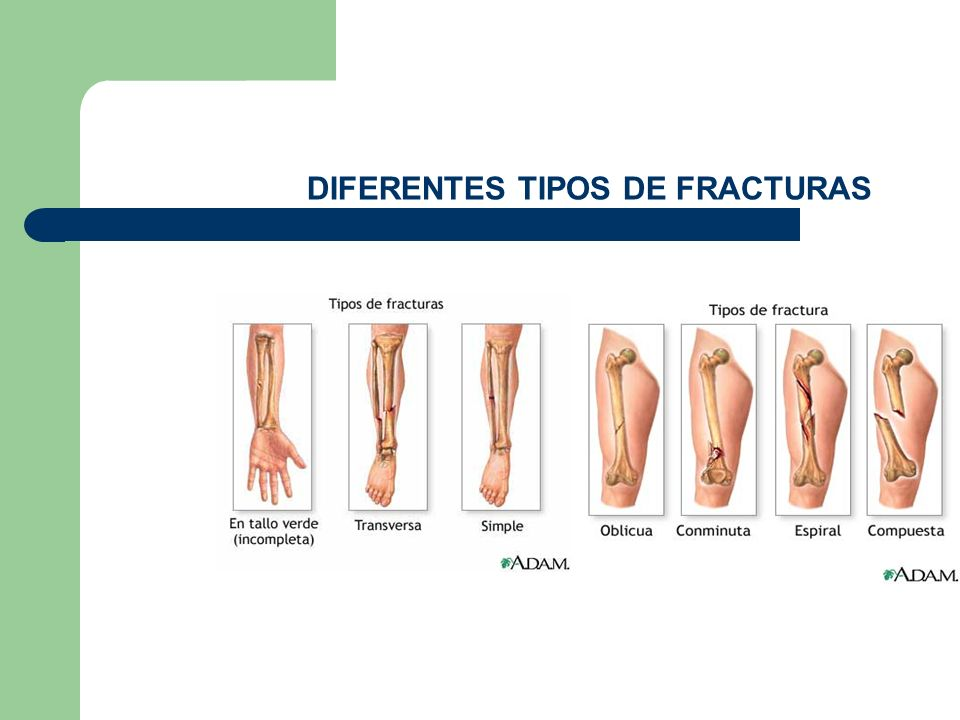 Fracturas y hemorragias ppt video online descargar for Diferentes tipos de ganchos para cortinas