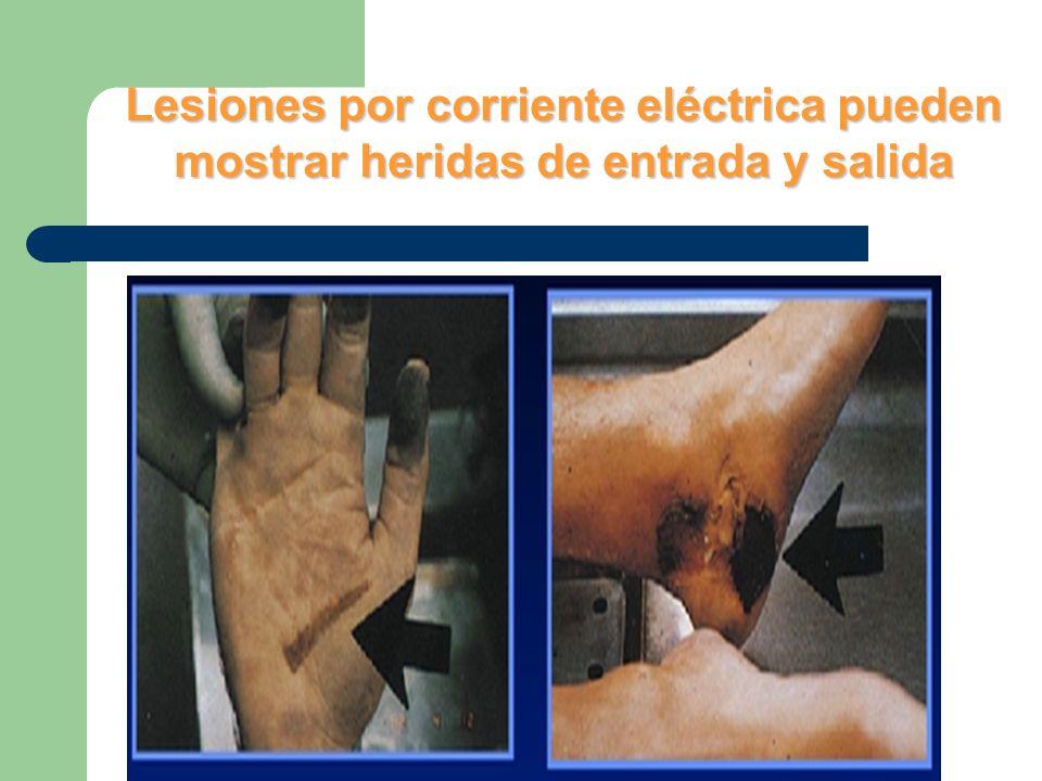 Lesiones por corriente eléctrica pueden mostrar heridas de entrada y salida
