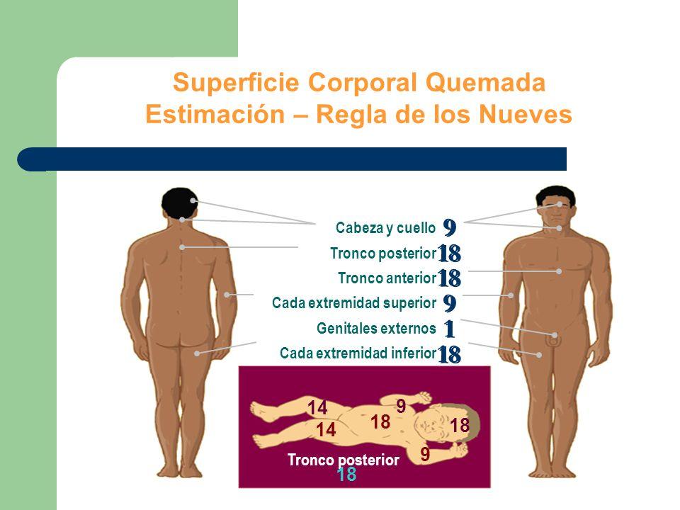 Superficie Corporal Quemada Estimación – Regla de los Nueves