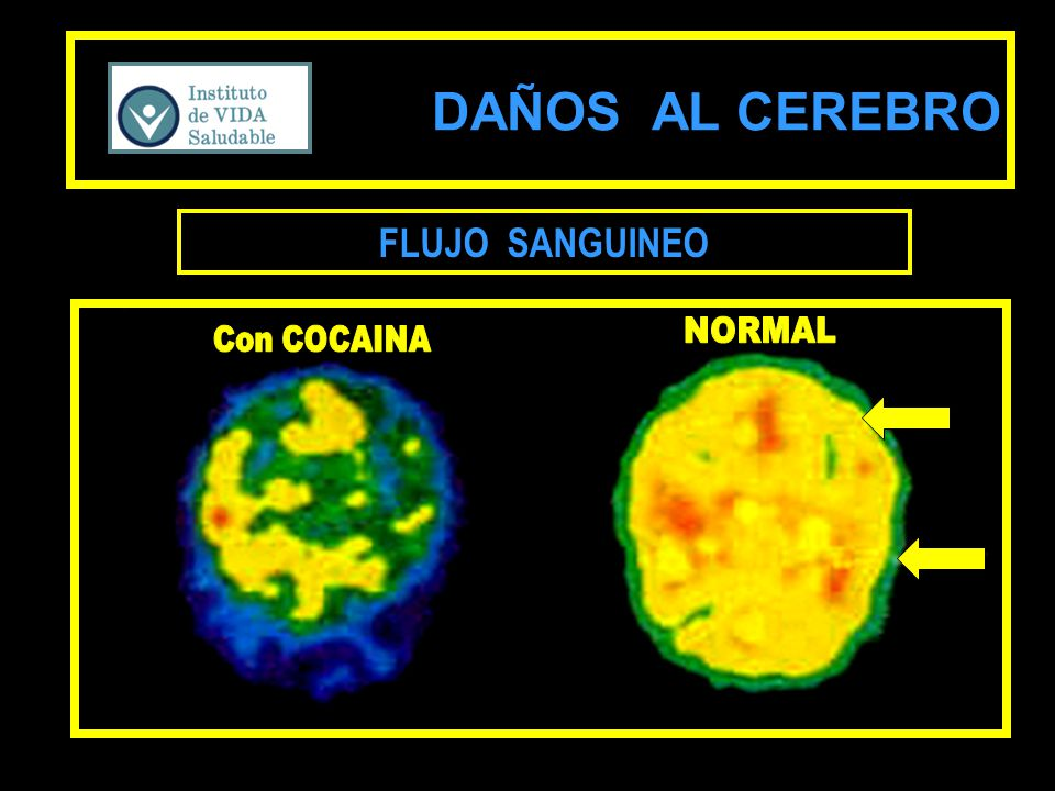 DAÑOS AL CEREBRO FLUJO SANGUINEO NORMAL Con COCAINA