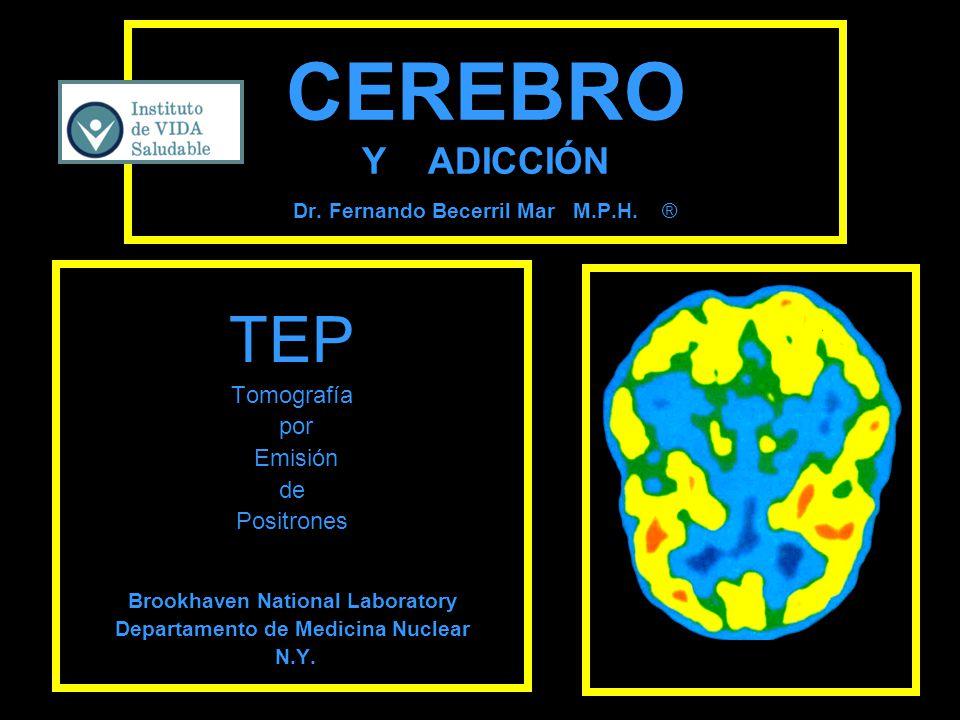 CEREBRO Y ADICCIÓN Dr. Fernando Becerril Mar M.P.H. ®