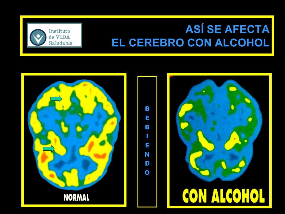 ASÍ SE AFECTA EL CEREBRO CON ALCOHOL