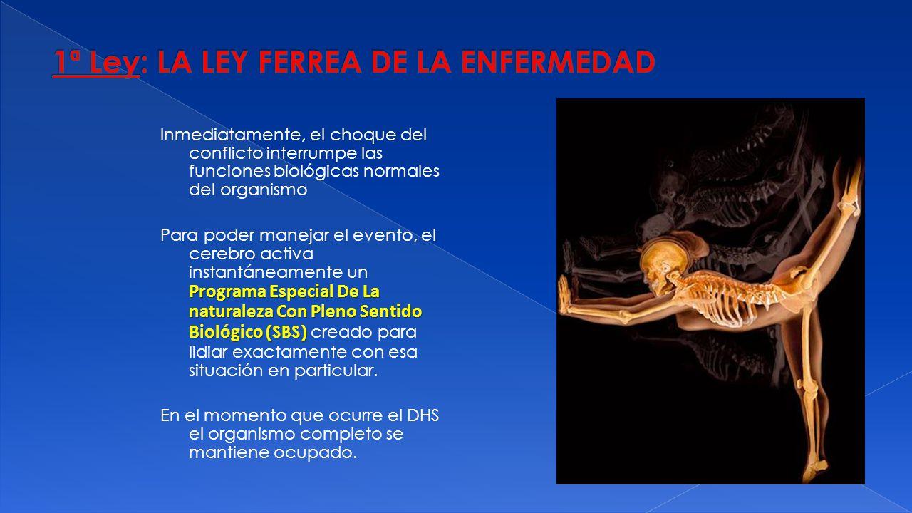 1ª Ley: LA LEY FERREA DE LA ENFERMEDAD