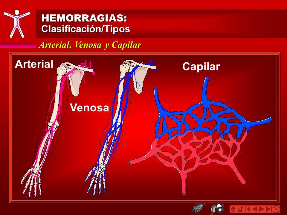 Arterial Capilar Venosa HEMORRAGIAS: Clasificación/Tipos