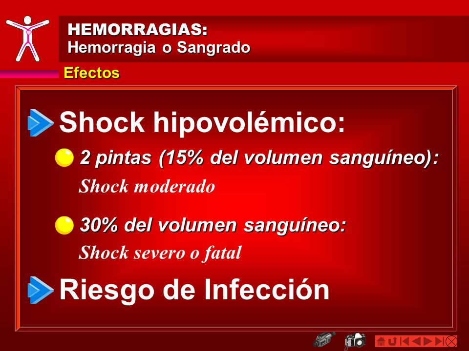 Shock hipovolémico: Riesgo de Infección