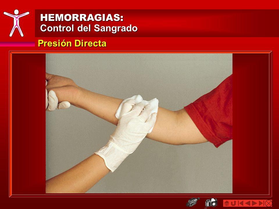 HEMORRAGIAS: Control del Sangrado Presión Directa