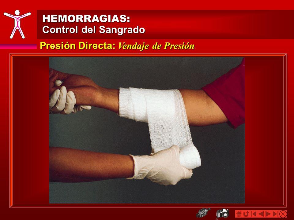 HEMORRAGIAS: Control del Sangrado Presión Directa: Vendaje de Presión