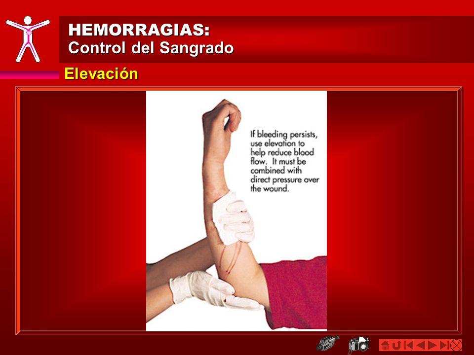 HEMORRAGIAS: Control del Sangrado Elevación
