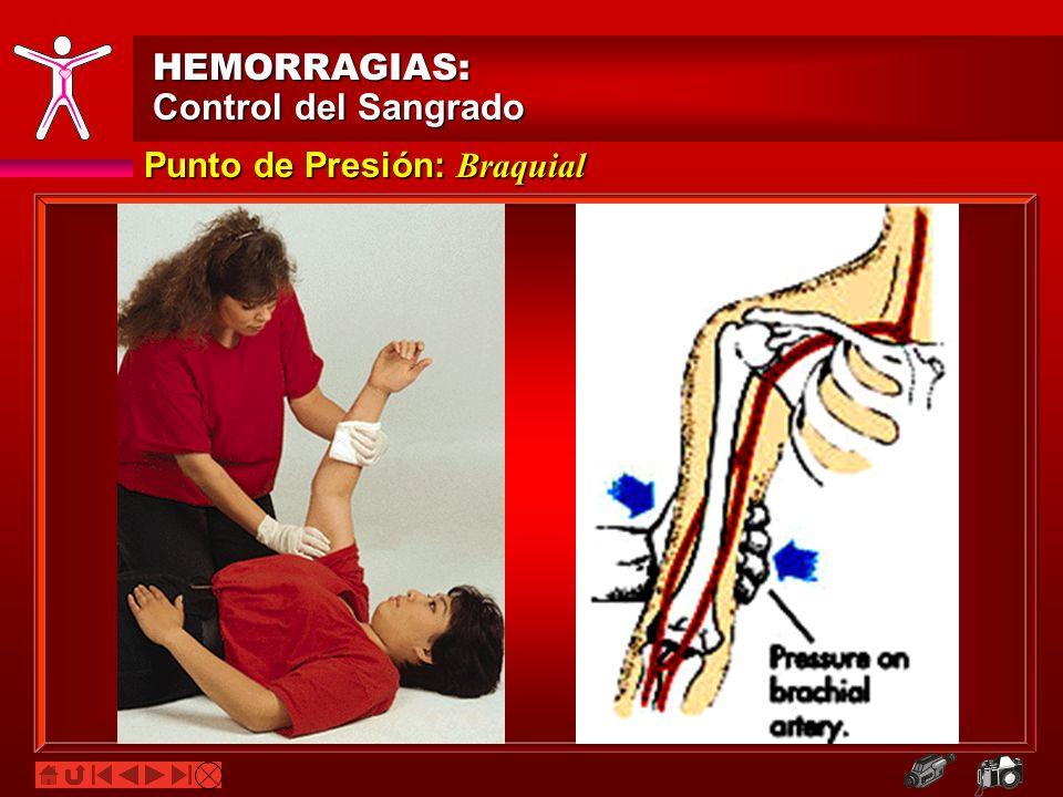 HEMORRAGIAS: Control del Sangrado Punto de Presión: Braquial