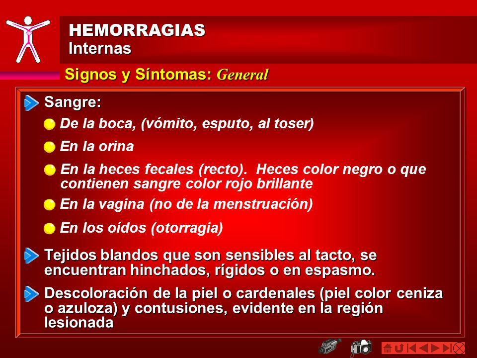 HEMORRAGIAS Internas Signos y Síntomas: General Sangre: