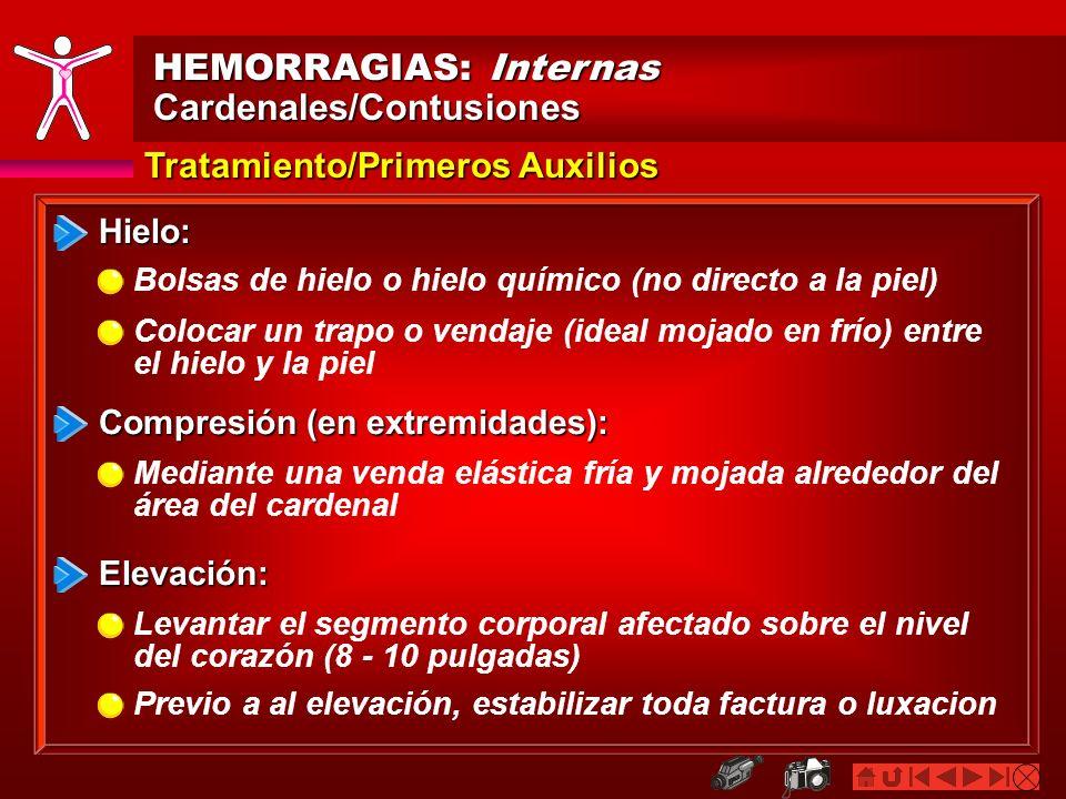 HEMORRAGIAS: Internas Cardenales/Contusiones