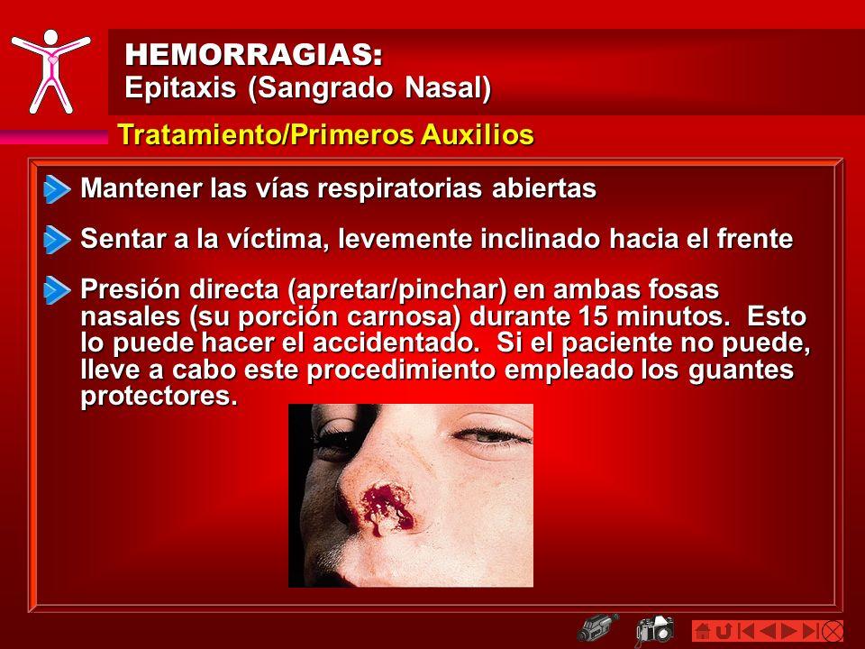 Epitaxis (Sangrado Nasal)