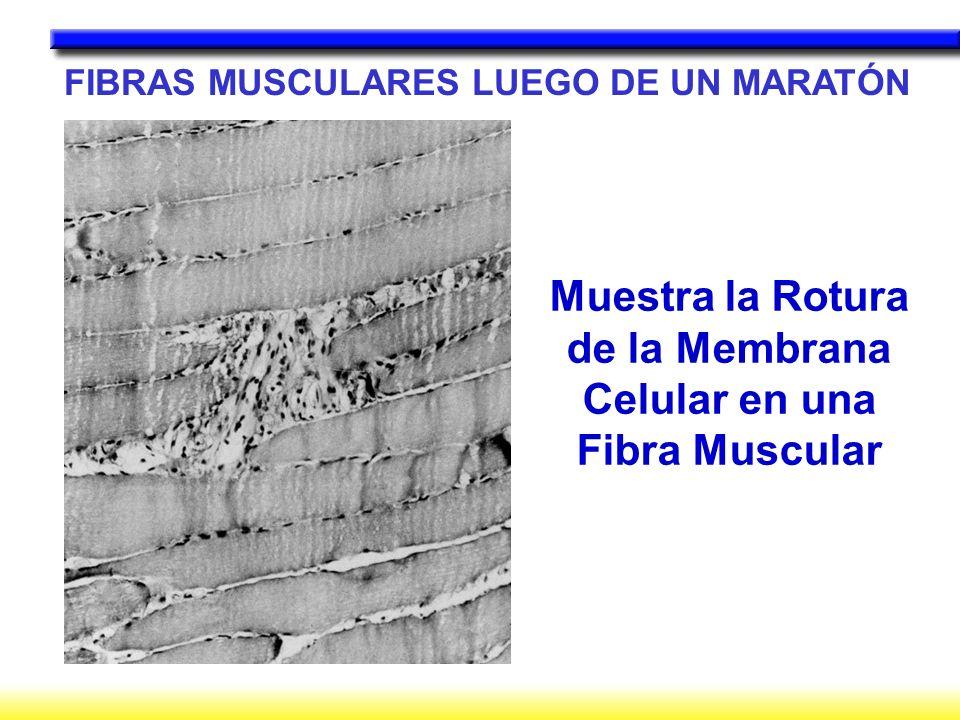 Muestra la Rotura de la Membrana Celular en una Fibra Muscular