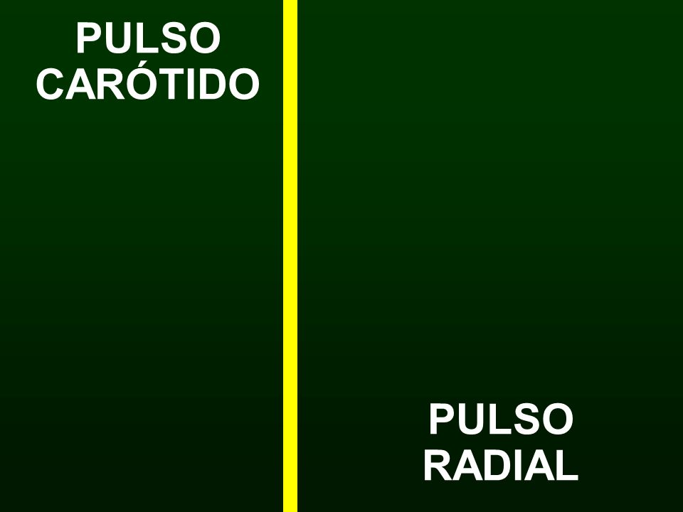 PULSO CARÓTIDO PULSO RADIAL