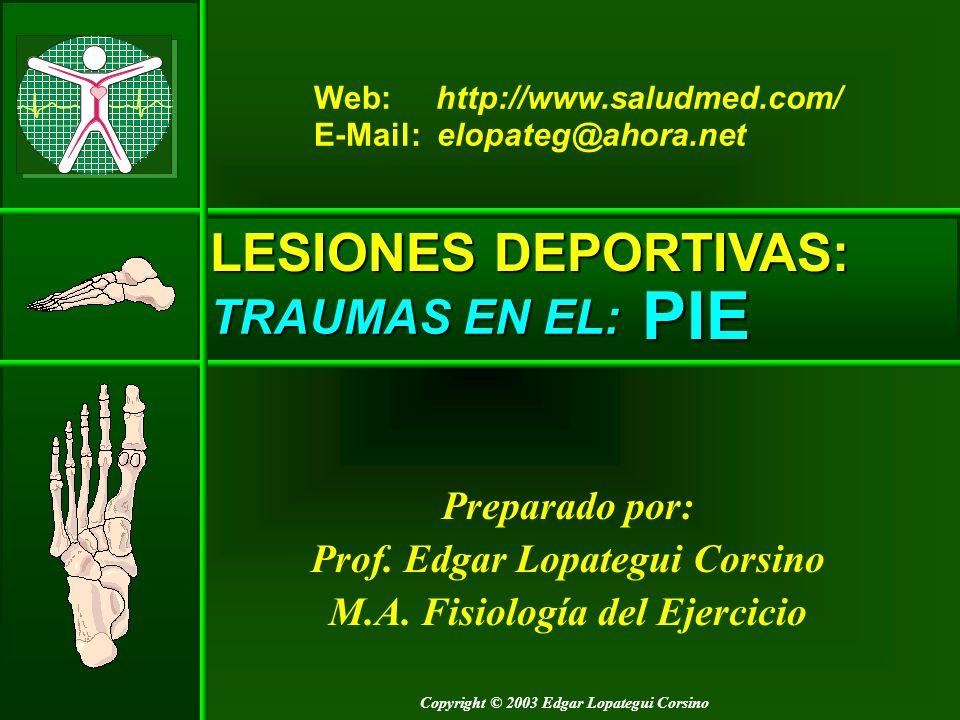 PIE LESIONES DEPORTIVAS: TRAUMAS EN EL: Preparado por: