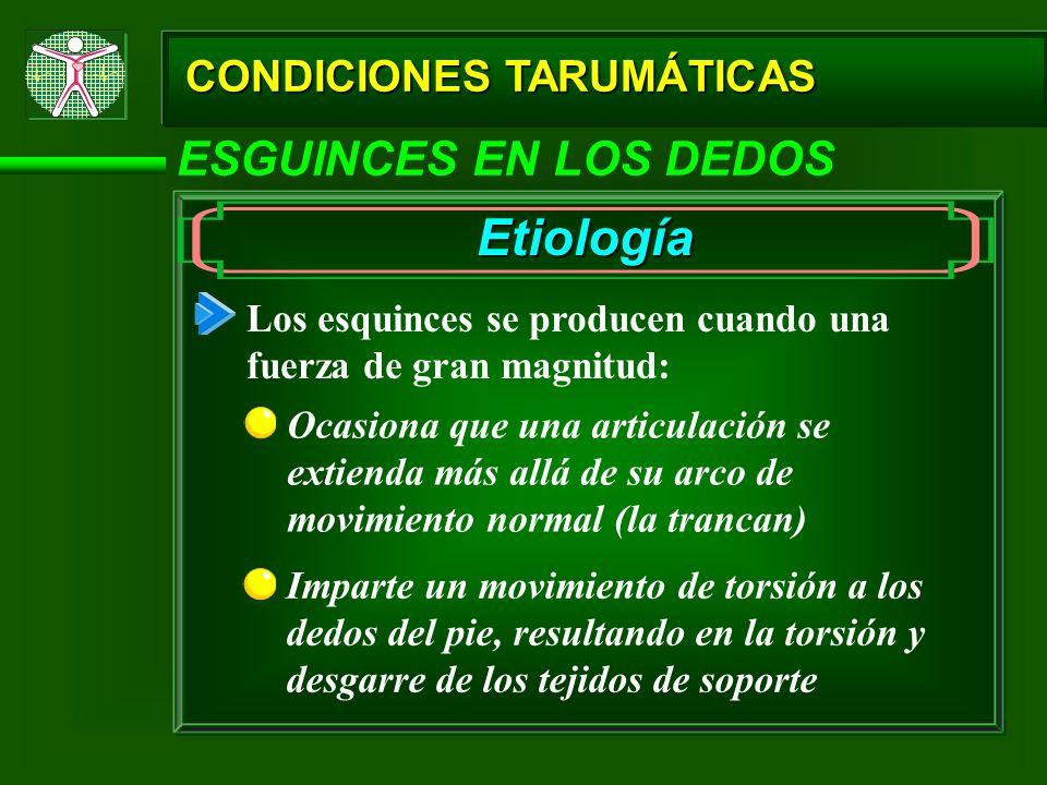 Etiología ESGUINCES EN LOS DEDOS CONDICIONES TARUMÁTICAS