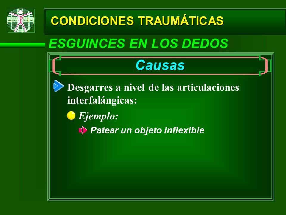 Causas ESGUINCES EN LOS DEDOS CONDICIONES TRAUMÁTICAS