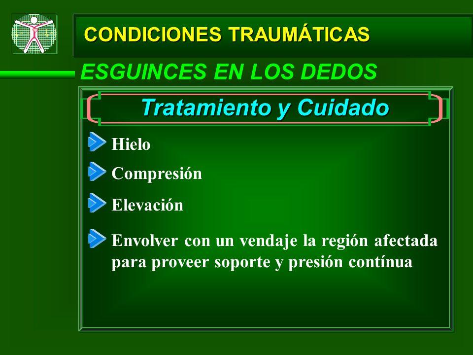 Tratamiento y Cuidado ESGUINCES EN LOS DEDOS CONDICIONES TRAUMÁTICAS