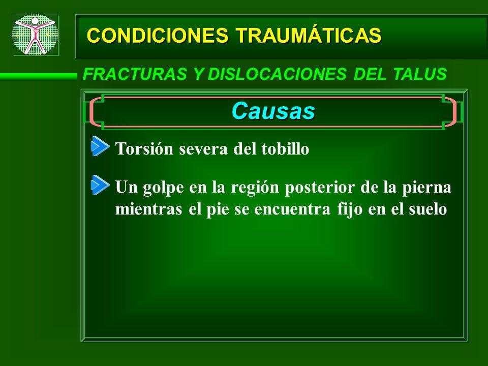 Causas CONDICIONES TRAUMÁTICAS Torsión severa del tobillo