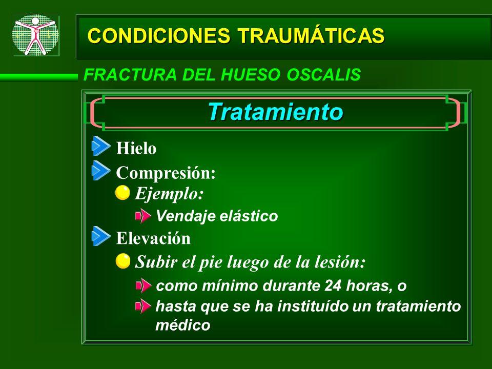 Tratamiento CONDICIONES TRAUMÁTICAS Hielo Compresión: Ejemplo: