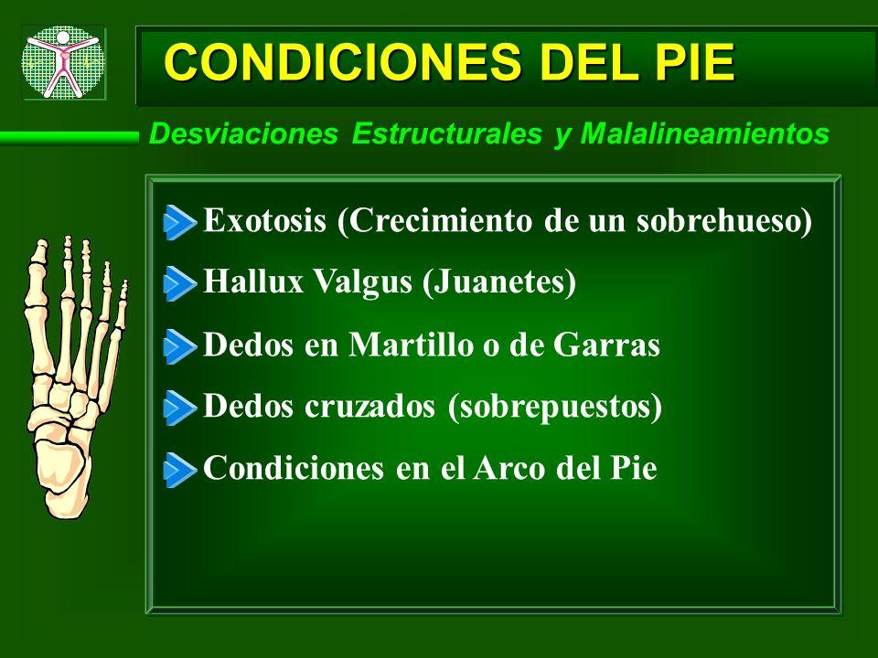 CONDICIONES DEL PIE Exotosis (Crecimiento de un sobrehueso)