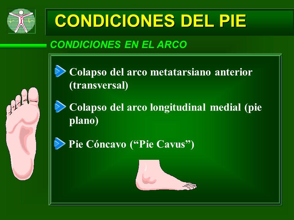 CONDICIONES DEL PIE CONDICIONES EN EL ARCO. Colapso del arco metatarsiano anterior (transversal) Colapso del arco longitudinal medial (pie plano)