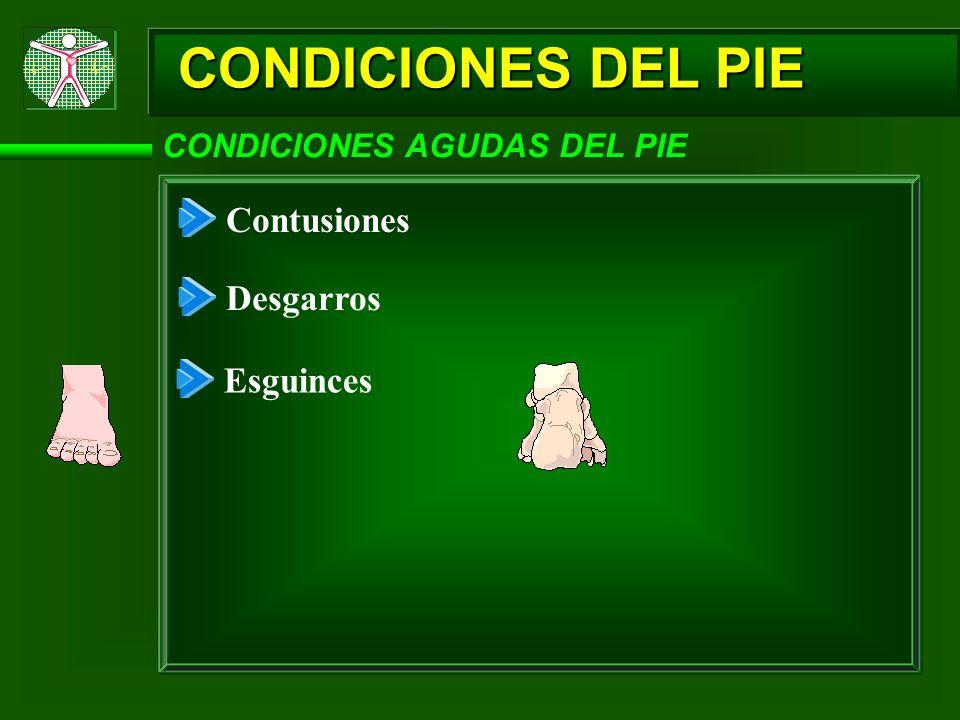 CONDICIONES DEL PIE Contusiones Desgarros Esguinces