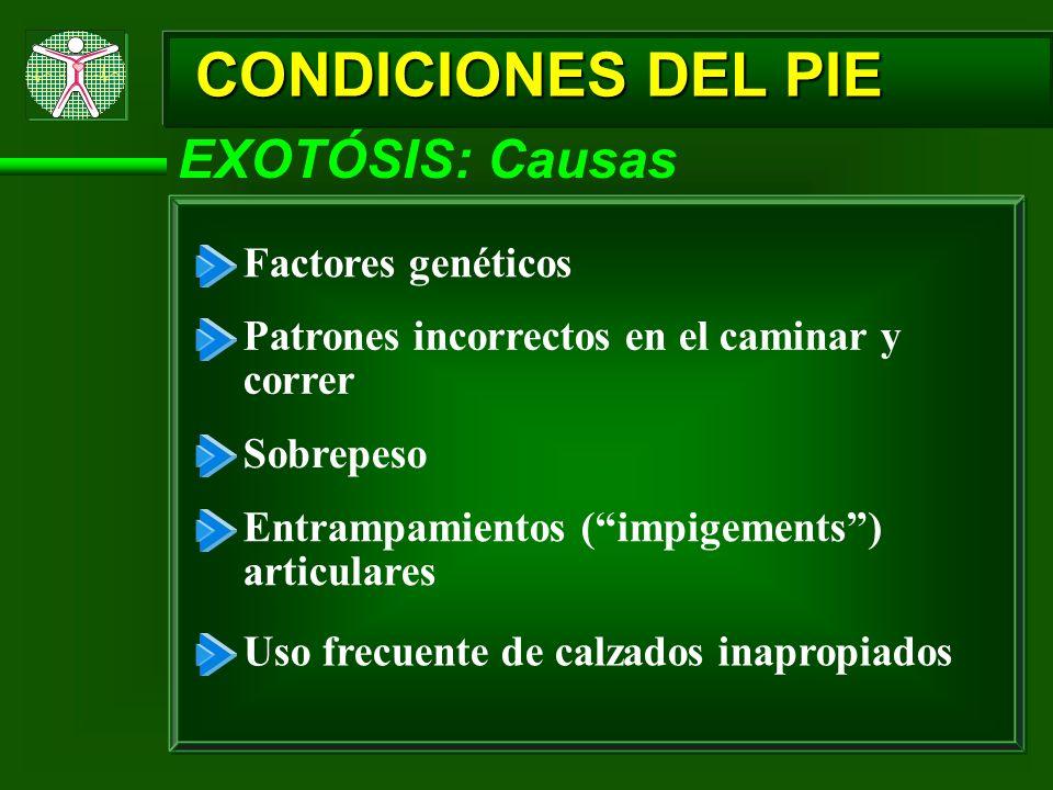 CONDICIONES DEL PIE EXOTÓSIS: Causas Factores genéticos