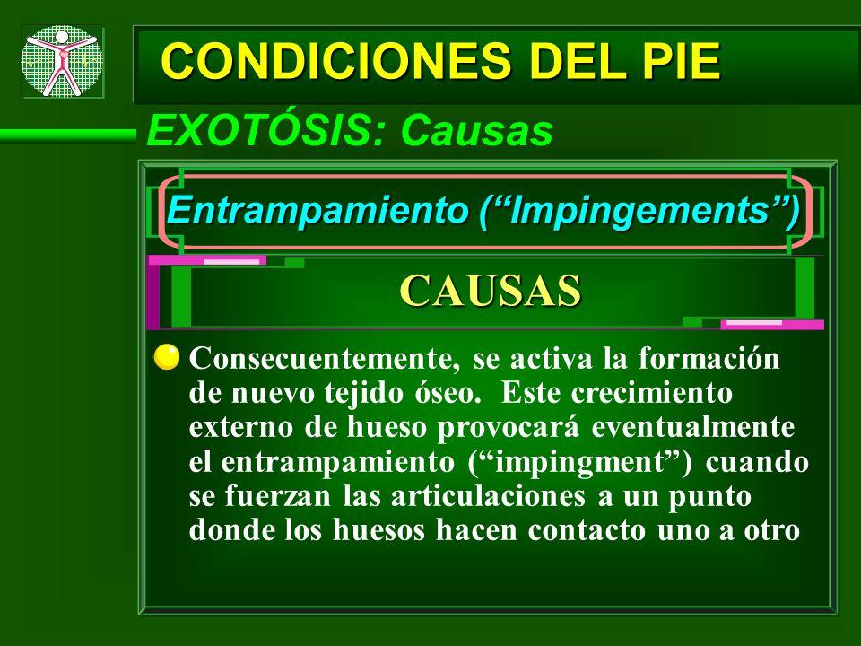 CONDICIONES DEL PIE CAUSAS EXOTÓSIS: Causas