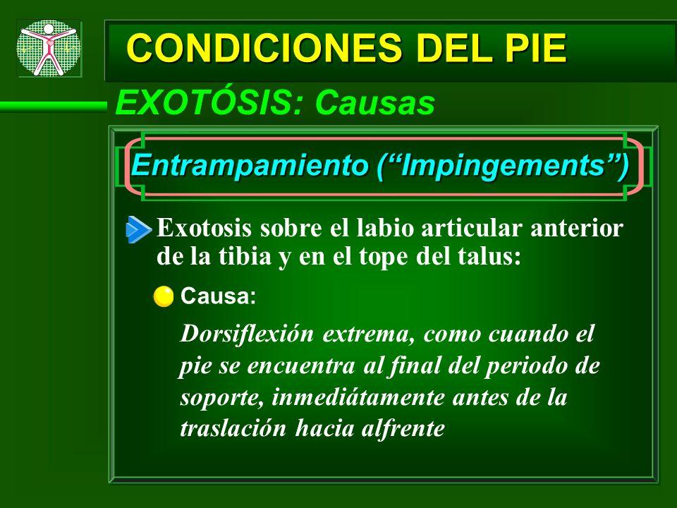 CONDICIONES DEL PIE EXOTÓSIS: Causas Entrampamiento ( Impingements )