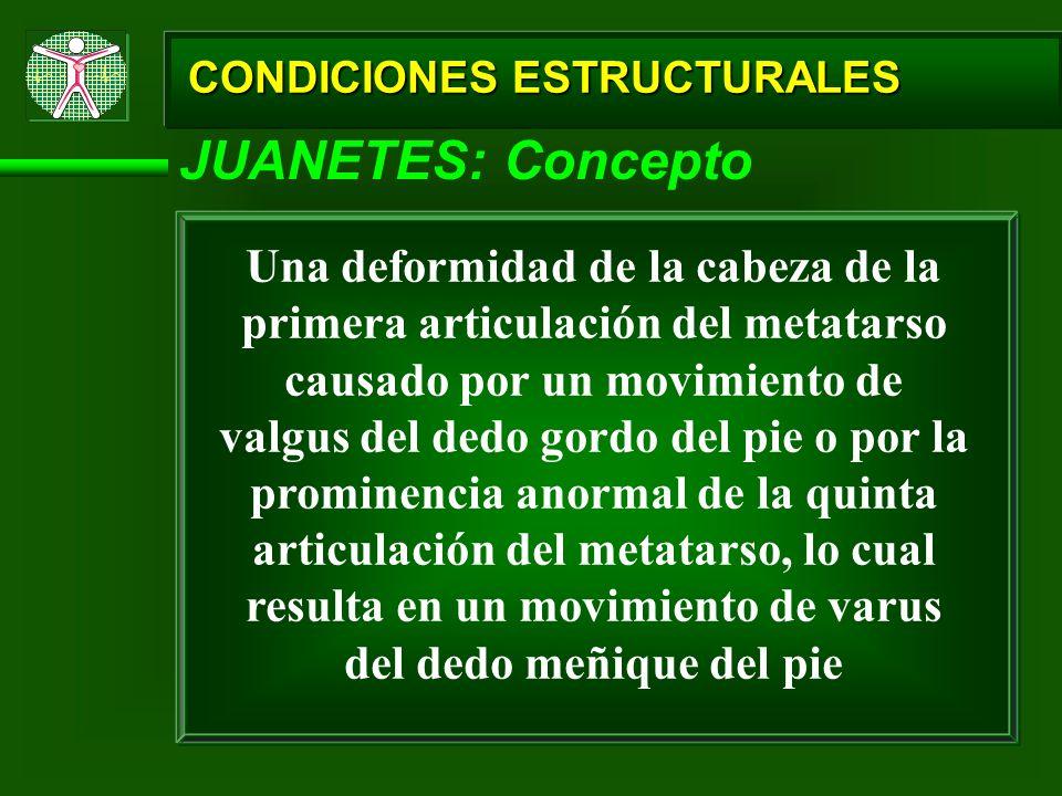CONDICIONES ESTRUCTURALES