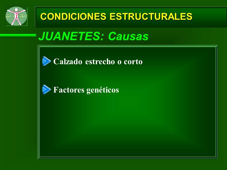 JUANETES: Causas CONDICIONES ESTRUCTURALES Calzado estrecho o corto