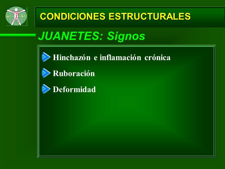 JUANETES: Signos CONDICIONES ESTRUCTURALES