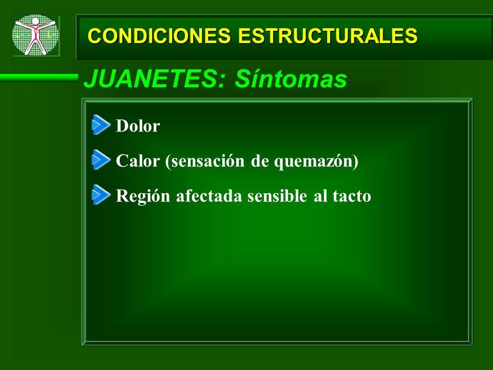 JUANETES: Síntomas CONDICIONES ESTRUCTURALES Dolor