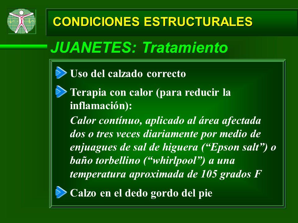 JUANETES: Tratamiento