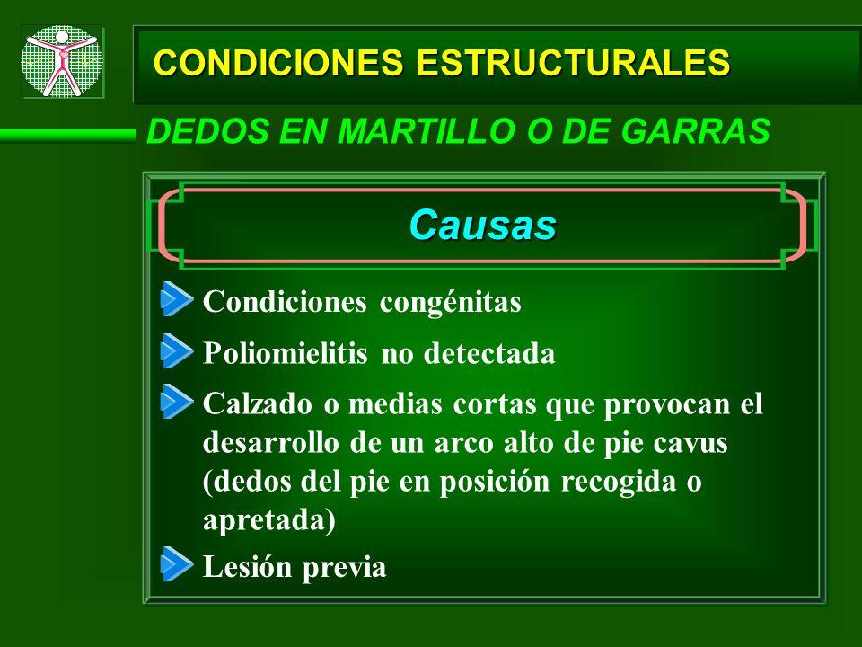 Causas CONDICIONES ESTRUCTURALES DEDOS EN MARTILLO O DE GARRAS