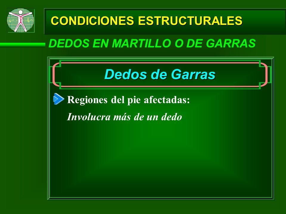 Dedos de Garras CONDICIONES ESTRUCTURALES