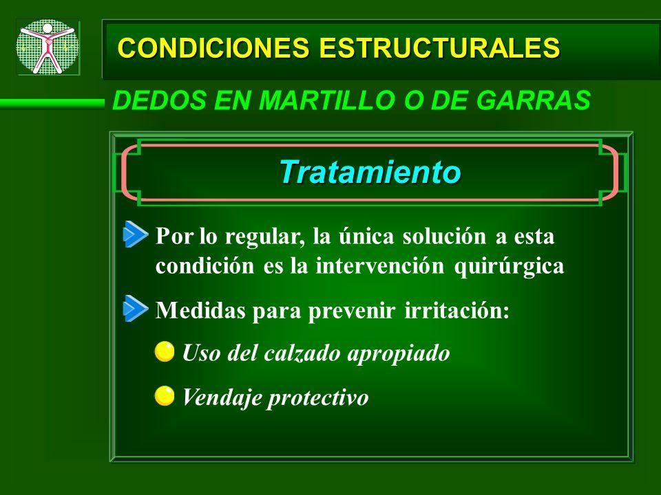 Tratamiento CONDICIONES ESTRUCTURALES DEDOS EN MARTILLO O DE GARRAS