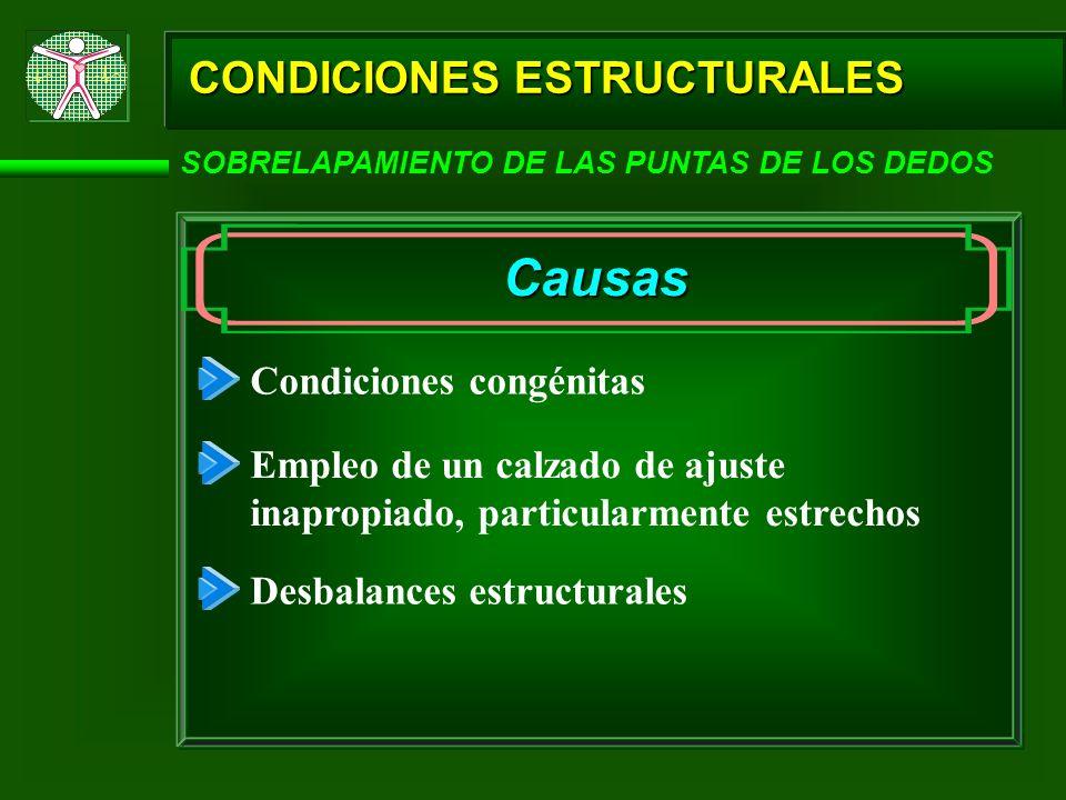 Causas CONDICIONES ESTRUCTURALES Condiciones congénitas