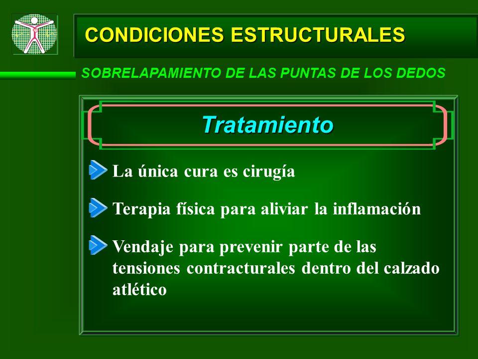 Tratamiento CONDICIONES ESTRUCTURALES La única cura es cirugía