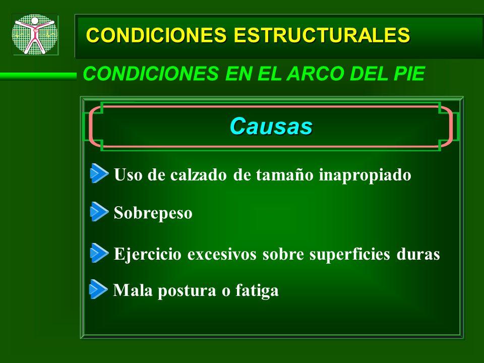 Causas CONDICIONES ESTRUCTURALES CONDICIONES EN EL ARCO DEL PIE