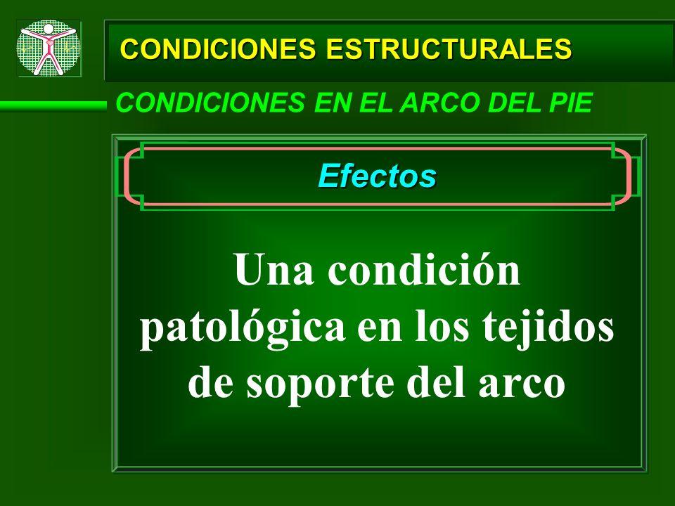 Una condición patológica en los tejidos de soporte del arco