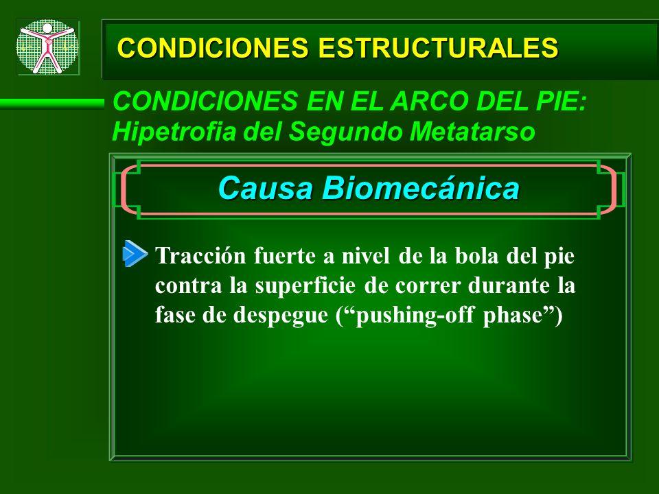Causa Biomecánica CONDICIONES ESTRUCTURALES