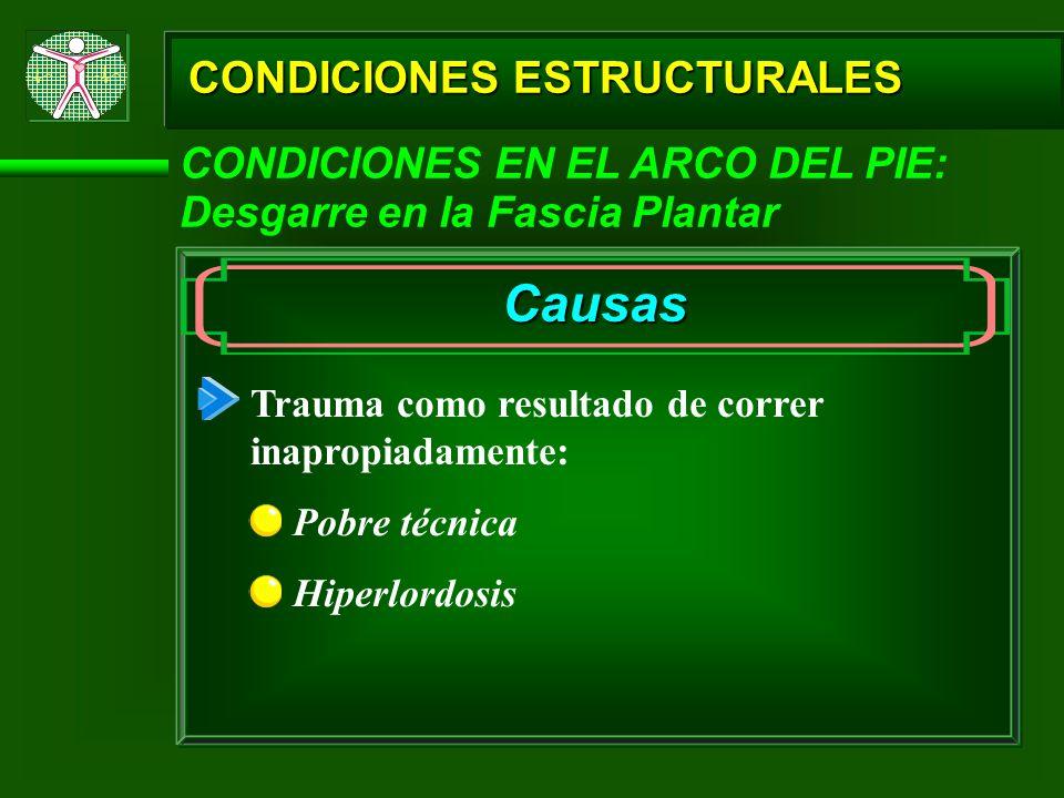 Causas CONDICIONES ESTRUCTURALES