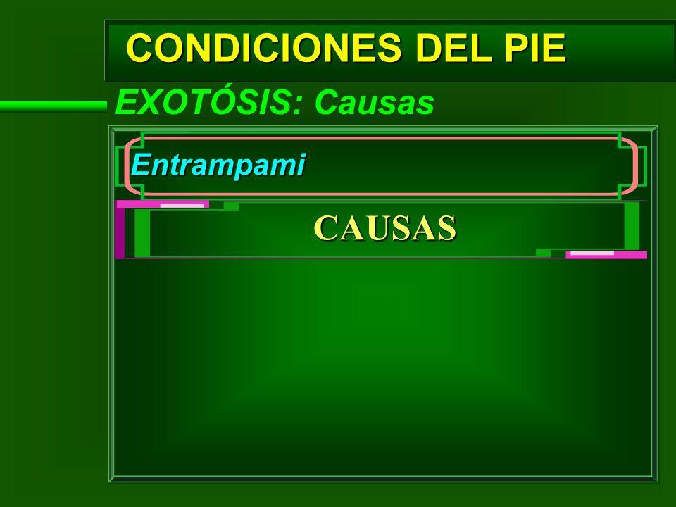 CONDICIONES DEL PIE CAUSAS EXOTÓSIS: Causas Entrampami