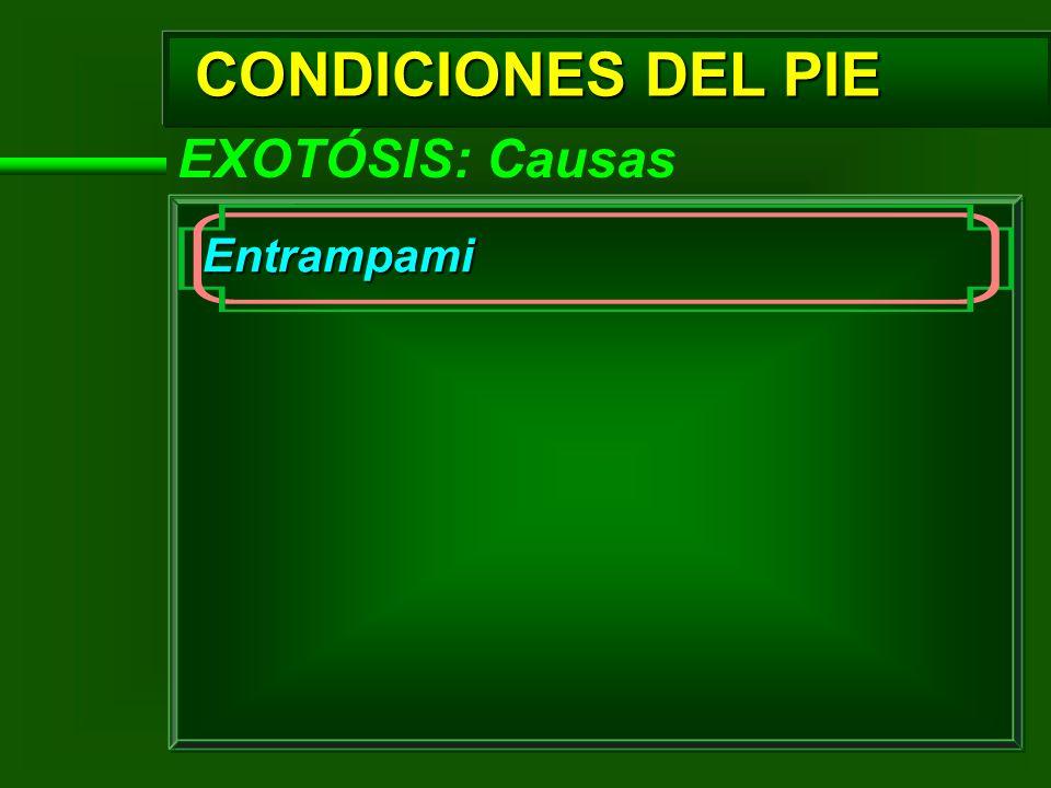 CONDICIONES DEL PIE EXOTÓSIS: Causas Entrampami